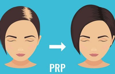 Benefits of PRP Treatment